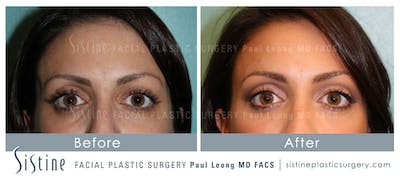 Dermal Fillers Gallery - Patient 4890897 - Image 1