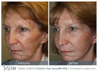Sculptra® Gallery - Patient 4890972 - Image 1