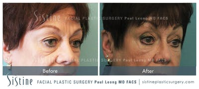 Sculptra® Gallery - Patient 4890979 - Image 2
