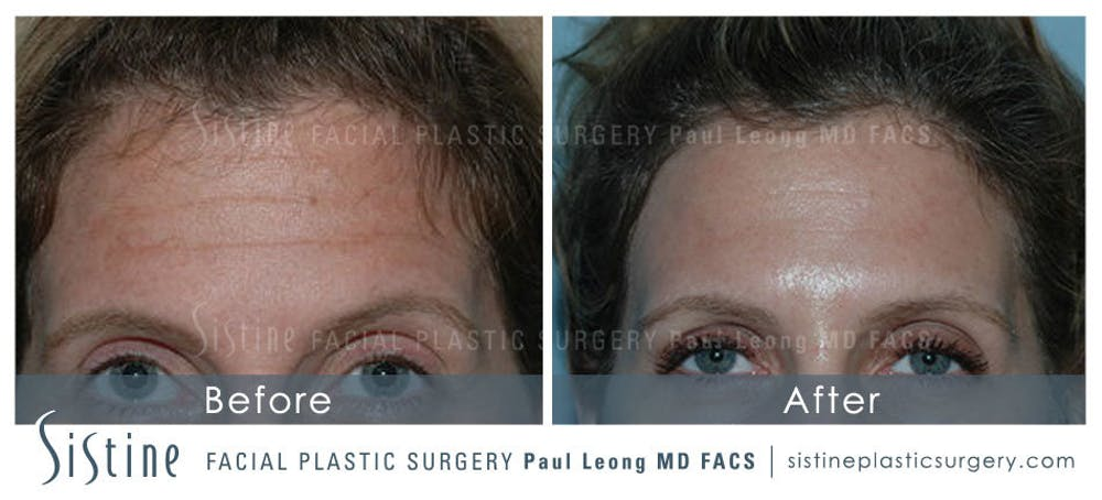 Botox® Cosmetic/ Dysport Gallery - Patient 4890982 - Image 1
