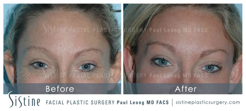 Botox® Cosmetic/ Dysport Gallery - Patient 4890984 - Image 1
