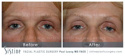 Botox® Cosmetic/ Dysport Gallery - Patient 4890985 - Image 1