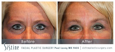 Botox® Cosmetic/ Dysport Gallery - Patient 4890988 - Image 1
