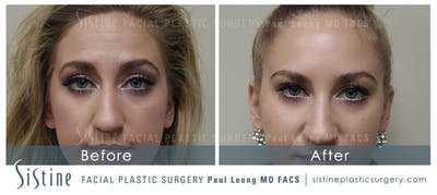 Botox® Cosmetic/ Dysport Gallery - Patient 4890989 - Image 1