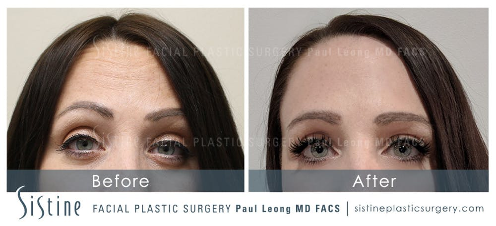 Botox® Cosmetic/ Dysport Gallery - Patient 4890991 - Image 1