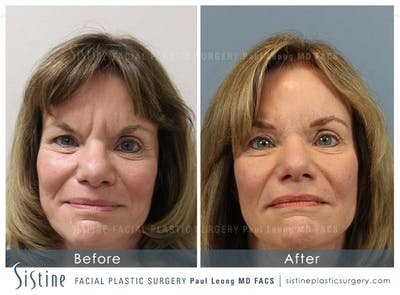 Botox® Cosmetic/ Dysport Gallery - Patient 4890992 - Image 1