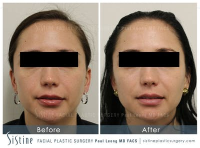 Botox® Cosmetic/ Dysport Gallery - Patient 4890997 - Image 2