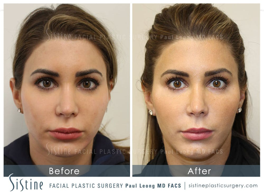 Botox® Cosmetic/ Dysport Gallery - Patient 4890998 - Image 1