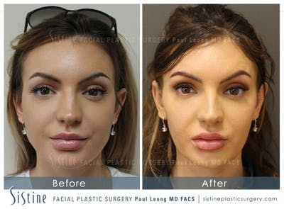 Botox® Cosmetic/ Dysport Gallery - Patient 4891000 - Image 1