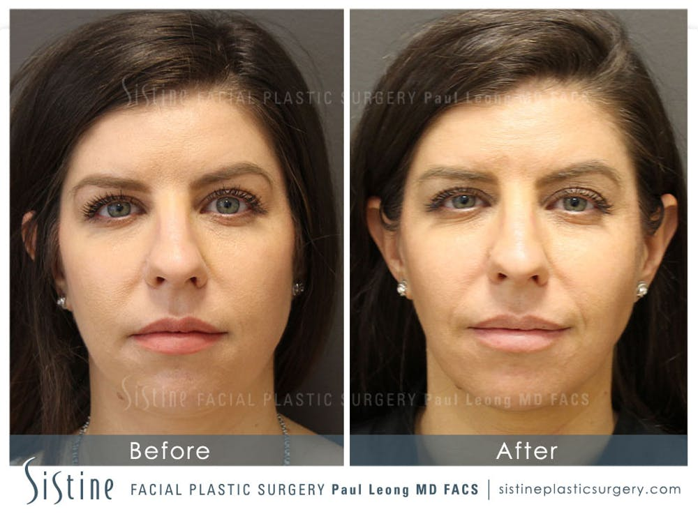 Botox® Cosmetic/ Dysport Gallery - Patient 4891001 - Image 1