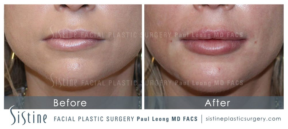 Lip Augmentation Gallery - Patient 4891003 - Image 1
