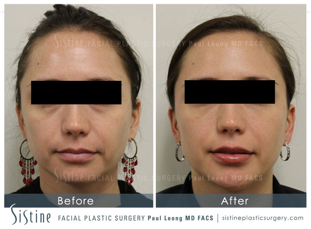 Lip Augmentation Gallery - Patient 4891005 - Image 1