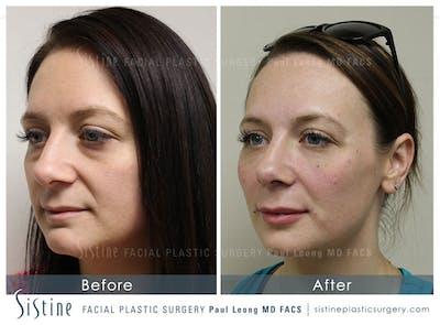 Lip Augmentation Gallery - Patient 4891007 - Image 2