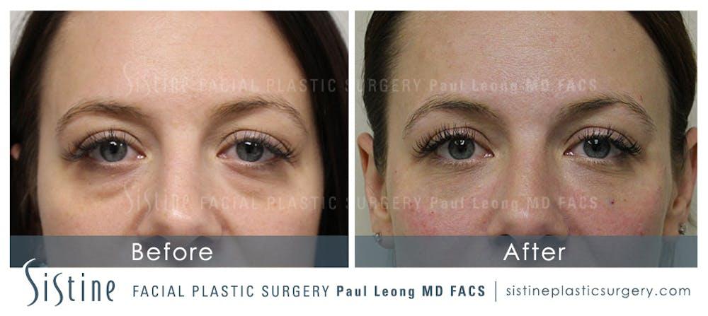 Lip Augmentation Gallery - Patient 4891008 - Image 1