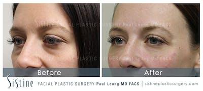 Lip Augmentation Gallery - Patient 4891008 - Image 2