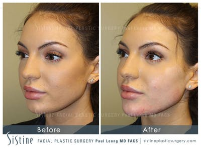 Chin Augmentation Gallery - Patient 4891011 - Image 1
