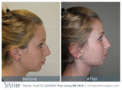 Non-Surgical Rhinoplasty Gallery - Patient 4891031 - Image 1