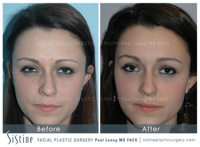 Non-Surgical Rhinoplasty Gallery - Patient 4891033 - Image 1