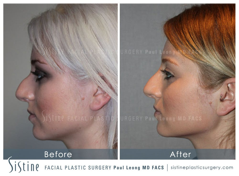 Non-Surgical Rhinoplasty Gallery - Patient 4891037 - Image 1