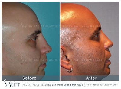 Non-Surgical Rhinoplasty Gallery - Patient 4891039 - Image 1