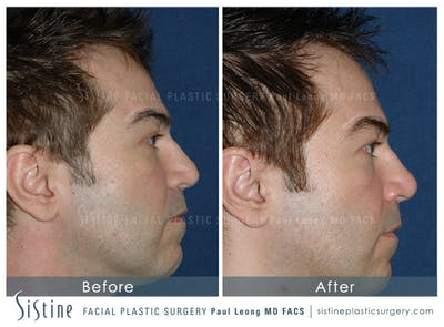Non-Surgical Rhinoplasty Gallery - Patient 4891040 - Image 1