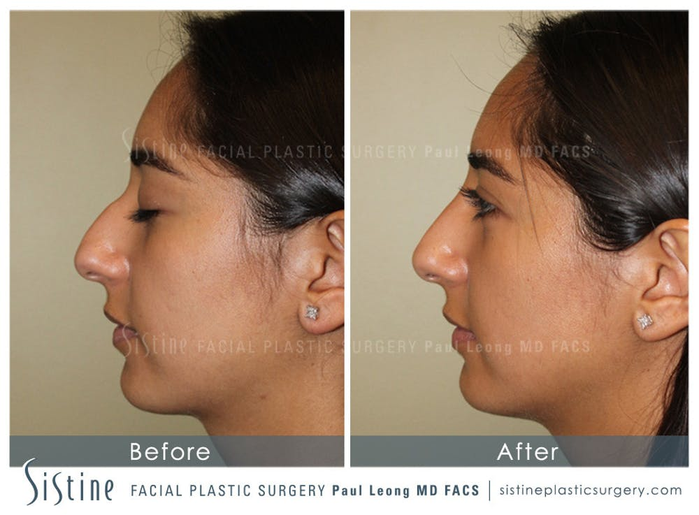 Non-Surgical Rhinoplasty Gallery - Patient 4891043 - Image 1