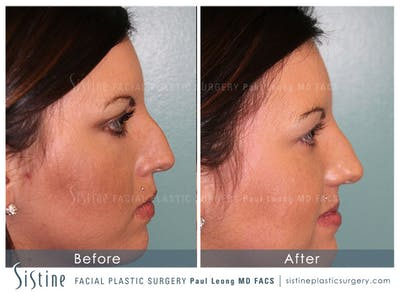 Non-Surgical Rhinoplasty Gallery - Patient 4891045 - Image 1