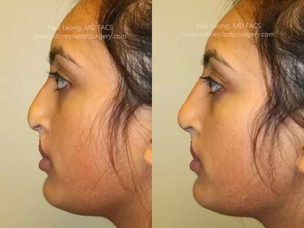 Non-Surgical Rhinoplasty Gallery - Patient 4891048 - Image 2