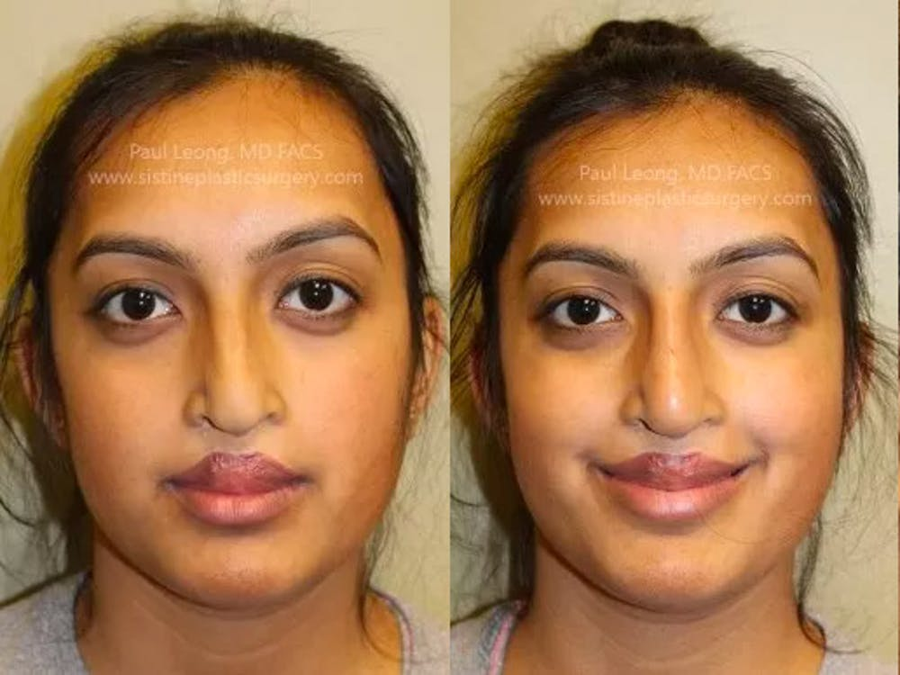 Non-Surgical Rhinoplasty Gallery - Patient 4891048 - Image 3