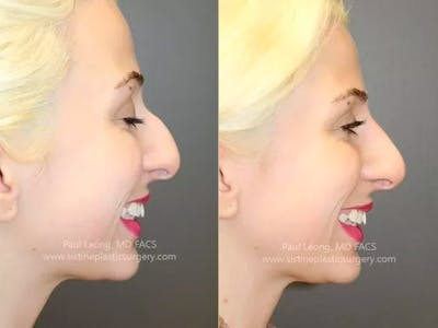 Non-Surgical Rhinoplasty Gallery - Patient 4891050 - Image 1