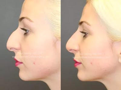 Non-Surgical Rhinoplasty Gallery - Patient 4891050 - Image 2