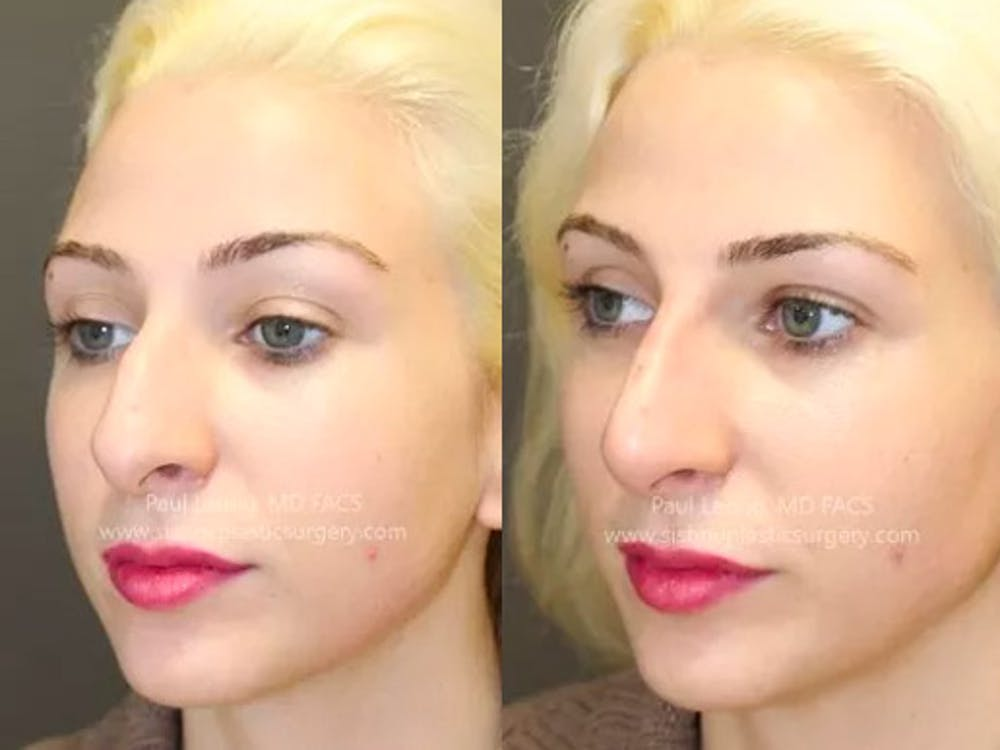 Non-Surgical Rhinoplasty Gallery - Patient 4891050 - Image 3