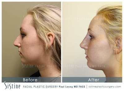 Non-Surgical Rhinoplasty Gallery - Patient 4891053 - Image 1
