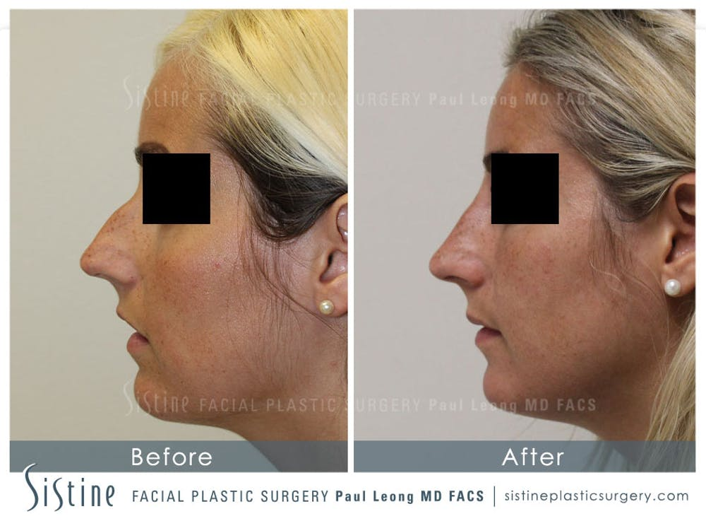 Non-Surgical Rhinoplasty Gallery - Patient 4891055 - Image 1