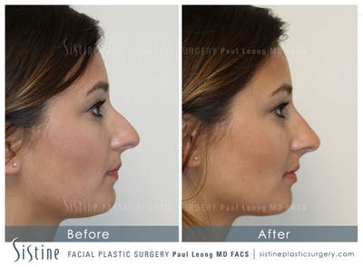 Non-Surgical Rhinoplasty Gallery - Patient 4891057 - Image 1
