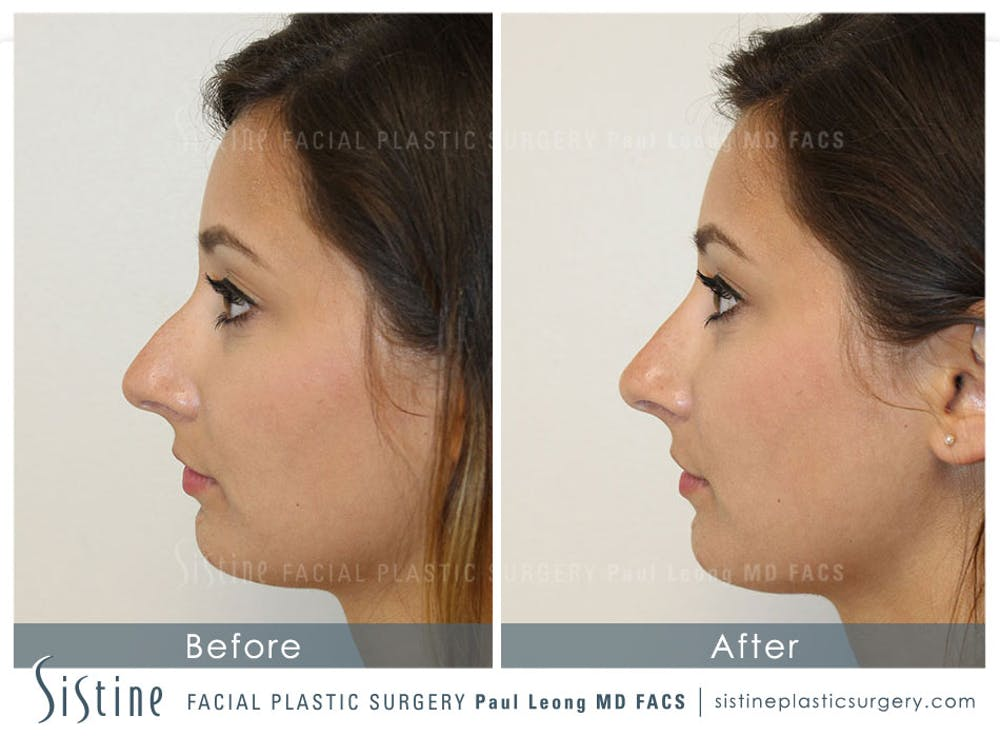 Non-Surgical Rhinoplasty Gallery - Patient 4891057 - Image 2