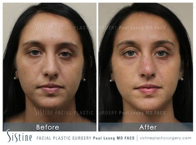 Non-Surgical Rhinoplasty Gallery - Patient 4891062 - Image 1