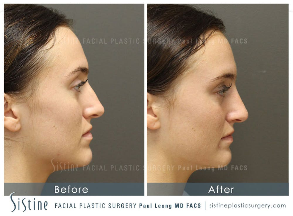 Non-Surgical Rhinoplasty Gallery - Patient 4891064 - Image 1