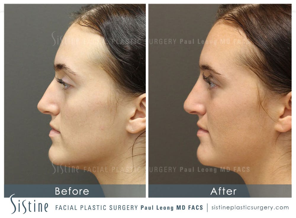 Non-Surgical Rhinoplasty Gallery - Patient 4891064 - Image 2