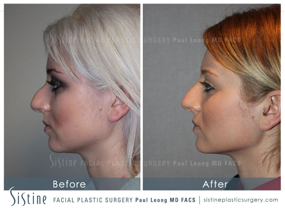 Non-Surgical Rhinoplasty Gallery - Patient 4891065 - Image 1