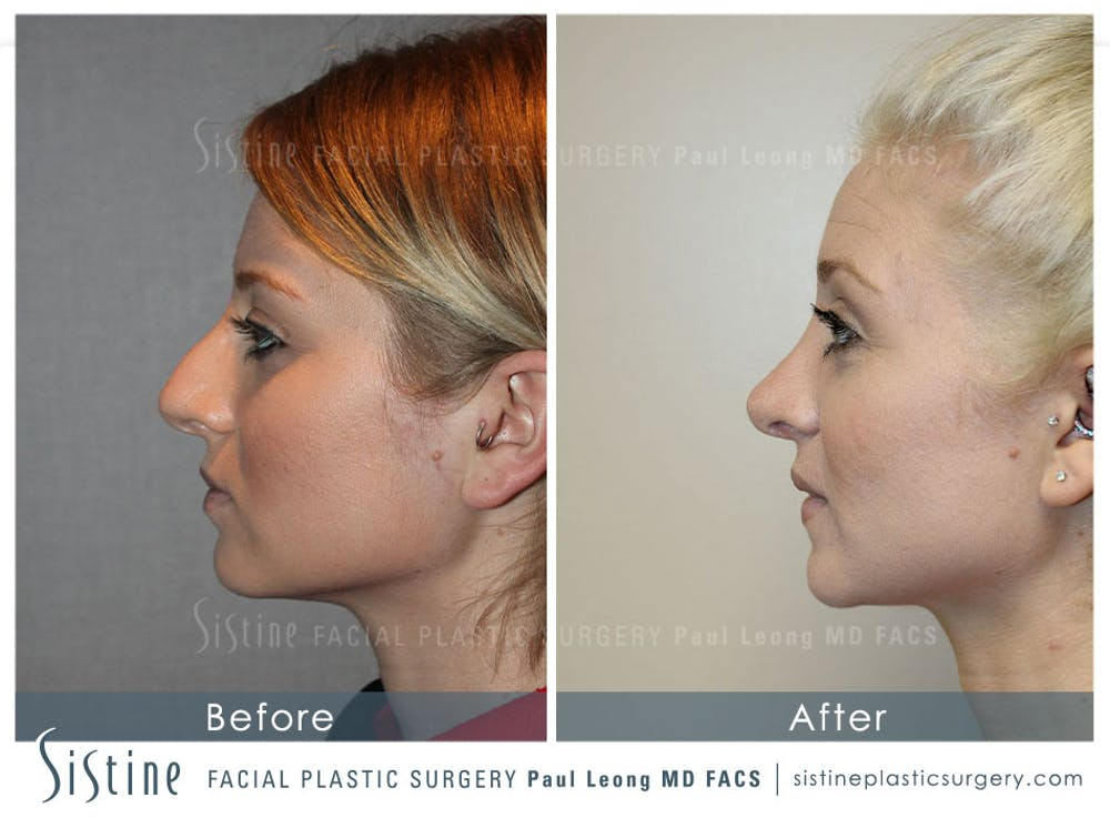 Non-Surgical Rhinoplasty Gallery - Patient 4891065 - Image 2