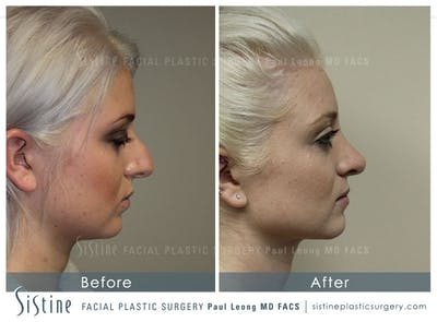 Non-Surgical Rhinoplasty Gallery - Patient 4891069 - Image 2