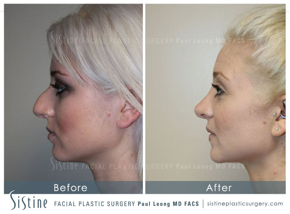 Non-Surgical Rhinoplasty Gallery - Patient 4891069 - Image 3