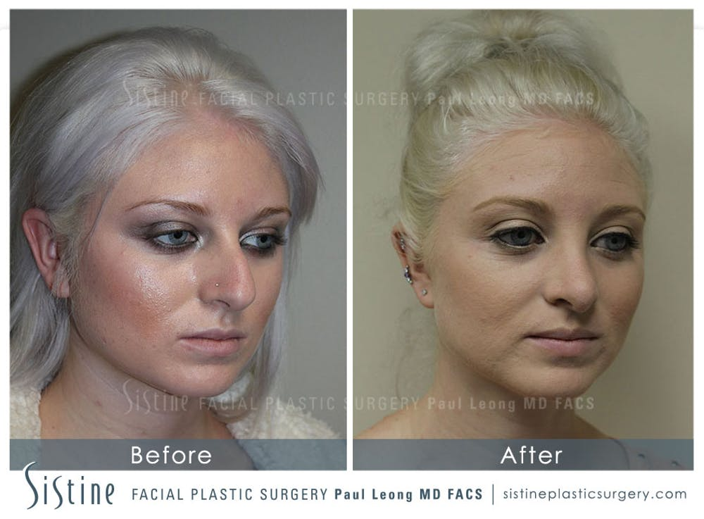 Non-Surgical Rhinoplasty Gallery - Patient 4891069 - Image 4