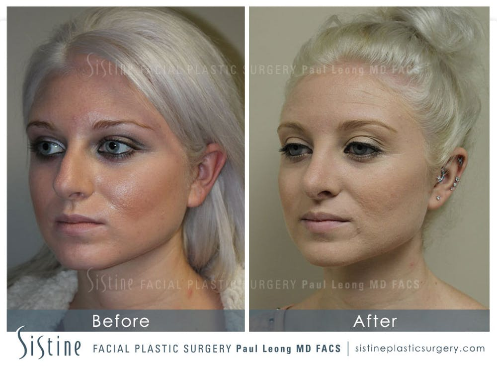 Non-Surgical Rhinoplasty Gallery - Patient 4891069 - Image 5