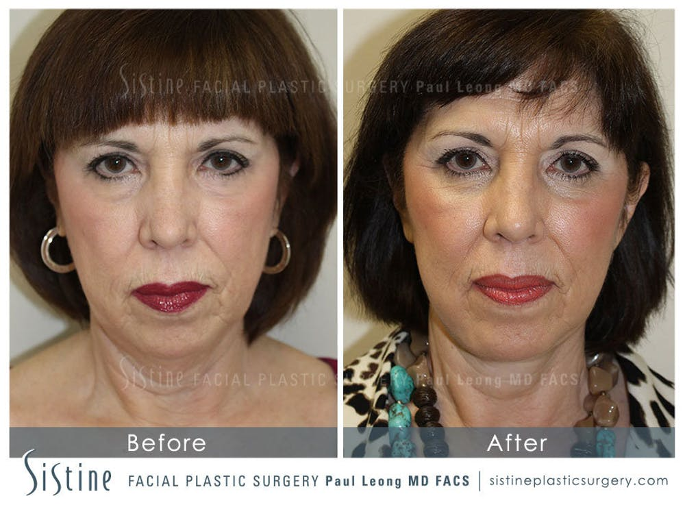 Restylane/ Juvederm Gallery - Patient 4891071 - Image 1