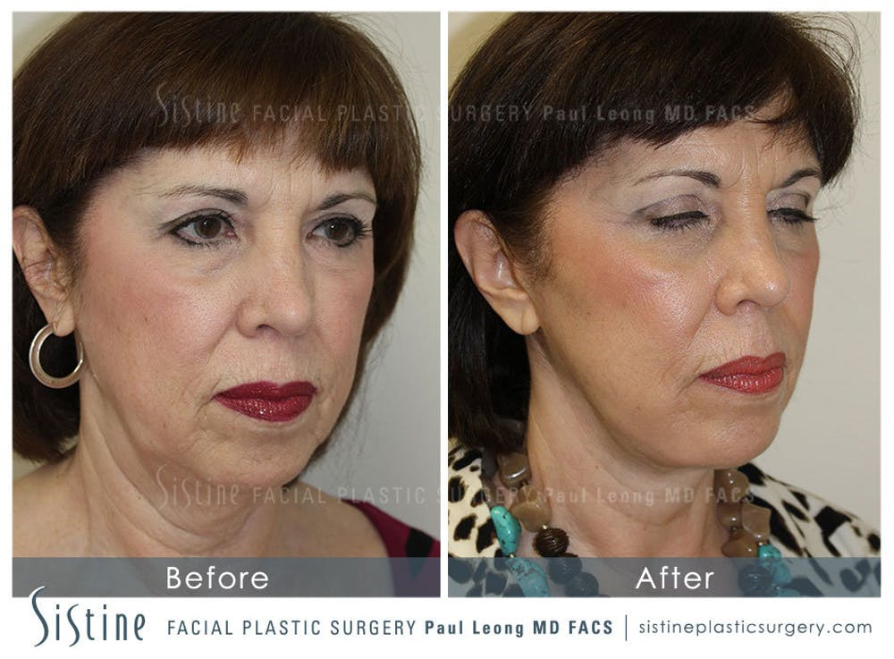 Restylane/ Juvederm Gallery - Patient 4891071 - Image 2