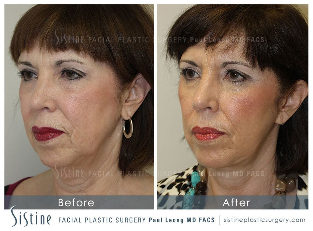 Restylane/ Juvederm Gallery - Patient 4891071 - Image 3