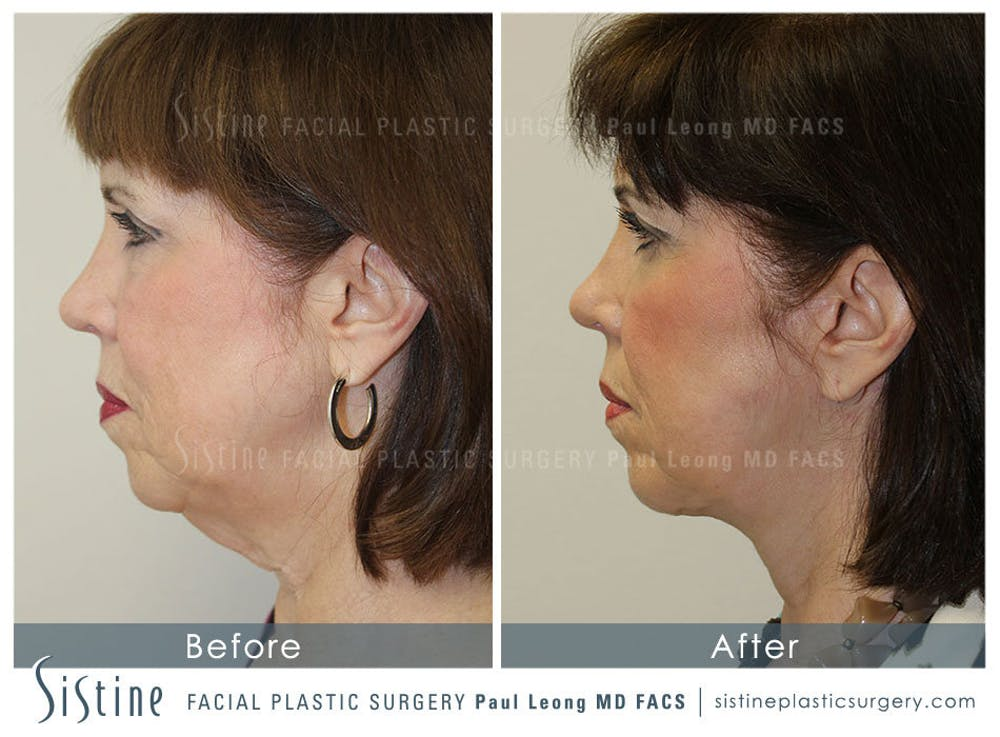 Restylane/ Juvederm Gallery - Patient 4891071 - Image 4
