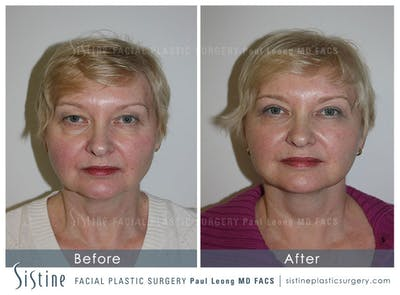 Restylane/ Juvederm Gallery - Patient 4891076 - Image 1